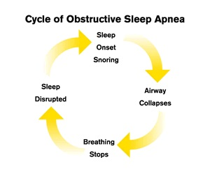 Cycle of obstructive sleep apnea